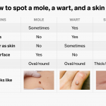 Wart Removal Method - Get Rid of Unsightly Warts Easily
